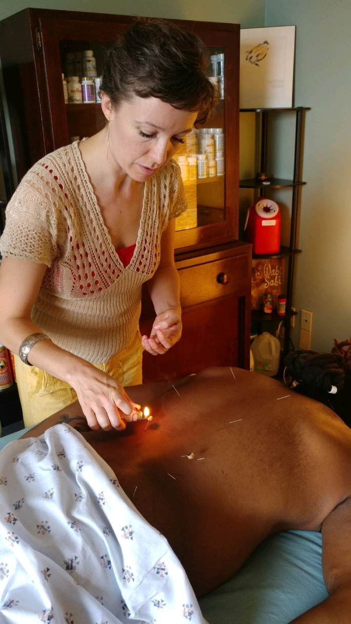 Kat acupuncture and warming moxibustion - small flame